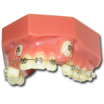 Cusp-Lok Cuspid Exposure Patient Education Model with Braces