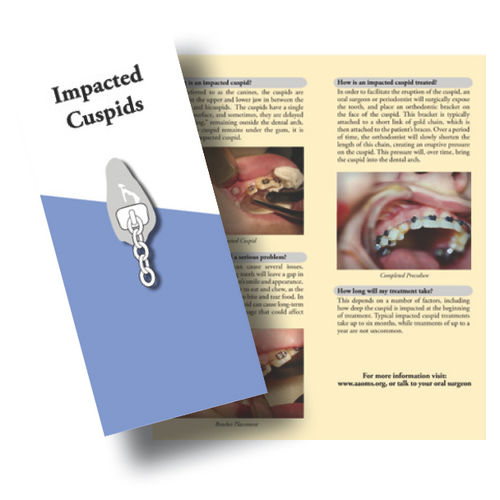 Impacted Cuspid Patient Education Flyer